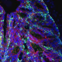 """Ansa: """"Tumori, trovato il codice di autodistruzione delle cellule"""""""